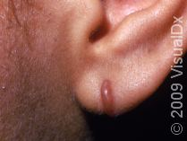 keloid on the face ear