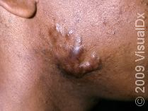 keloid on the cheek