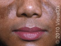 Melasma on the face of adult female