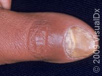 This image displays onychomycosis, a nail fungus infection.
