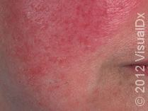 Rosacea signs and symptoms: redness, pimples, rhinophyma