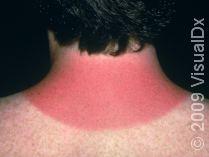sunburn_44610_med.jpg