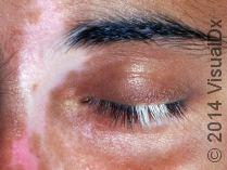 Vitiligo on the face