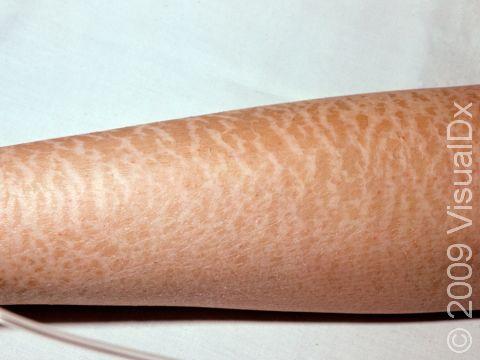 Xerosis (dry skin)