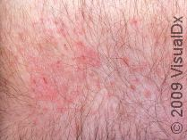 Amild rash due to itching caused by dry skin.