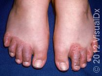 Contact Dermatitis Pediatric