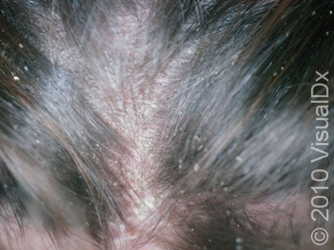 Pediculosis Capitis (Head Lice)