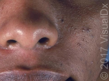 Acne-vulgaris-cheek-and-nose.jpg