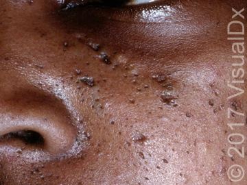 Acne-vulgaris-upper-cheek.jpg