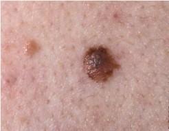 Abnormal mole
