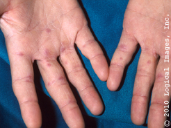 Chilblains on the hand