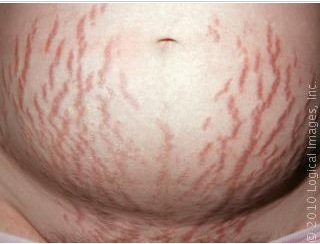Pregnant Women Stretch Marks