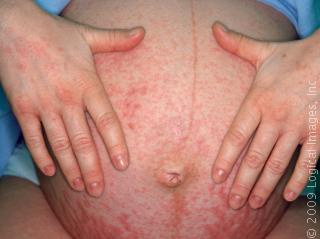 Pruritic Urticarial Papules And Plaques Of Pregnancy Face