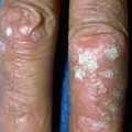 Psoriasis on fingers