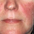 Systemic Lupus