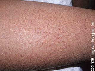 The Top 10 Itchiest Rashes Skinsight